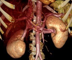 CT Abdominal Analysis 1.
