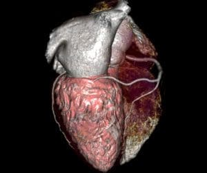 Advanced Visualization - CT - CT Cardiac Functional Analysis image