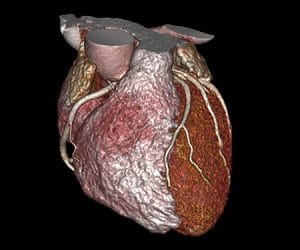 Advanced Visualization Cardiovascular Imaging Cardio Thoracic Imaging Vital Images