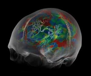 CT Brain Perfusion 4D image 1.