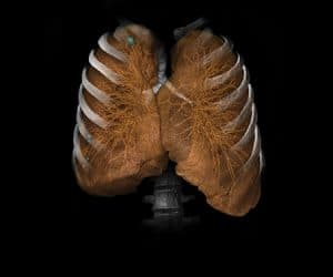 CT Lung Analysis image 1.