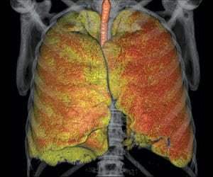 CT Lung Density Analysis image 1.