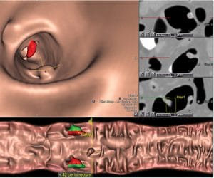 iCAD VeraLook CT Colon CAD image.
