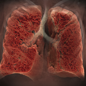 Clinical applications image of lungs.