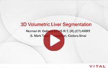 3D Volumetric liver segmentation webinar by Norman