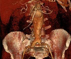 Vitrea Image Denoising image 1.